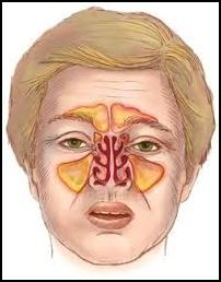 Breckenridge Sinus and Acupuncture / Chinese Medicine